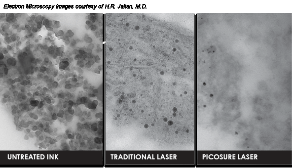 picosure_2_laser_response_comparison2